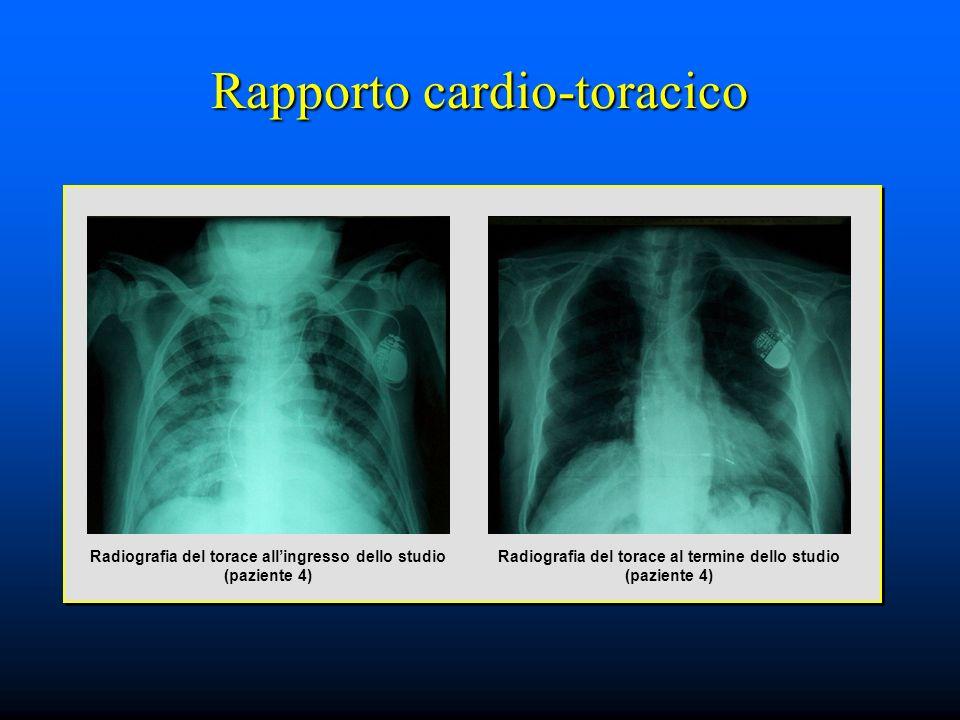 Rapporto cardio-toracico