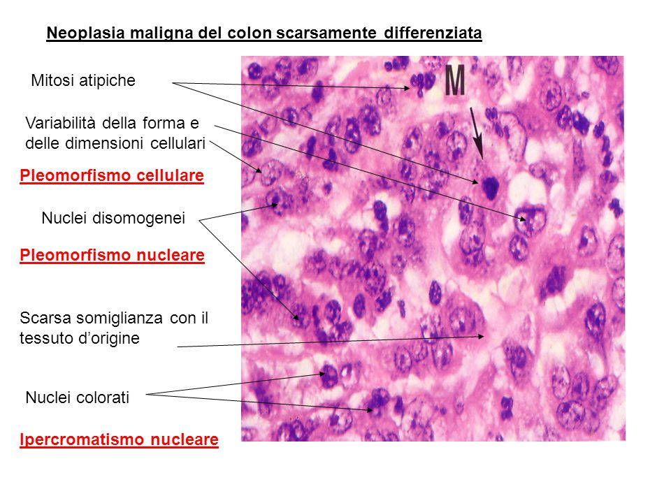 Neoplasia maligna del colon scarsamente differenziata