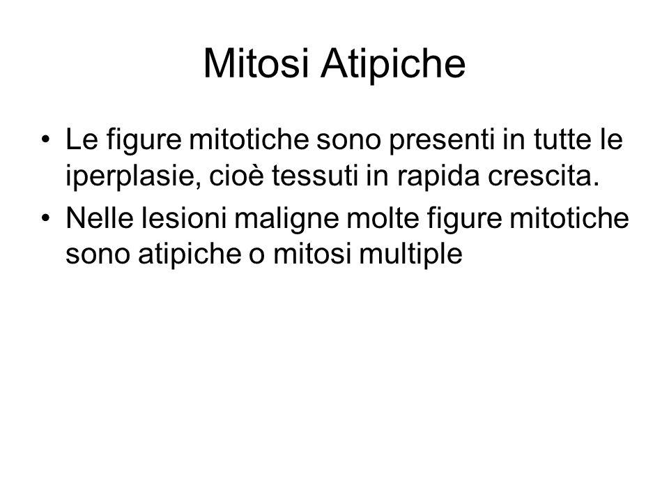 Mitosi Atipiche Le figure mitotiche sono presenti in tutte le iperplasie, cioè tessuti in rapida crescita.