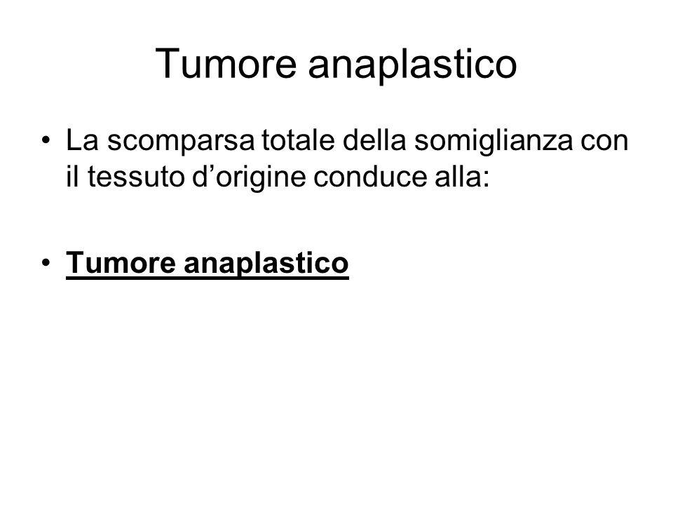 Tumore anaplastico La scomparsa totale della somiglianza con il tessuto d'origine conduce alla: Tumore anaplastico.