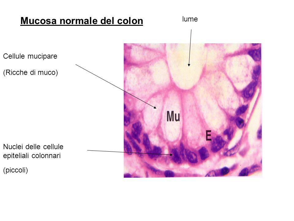 Mucosa normale del colon
