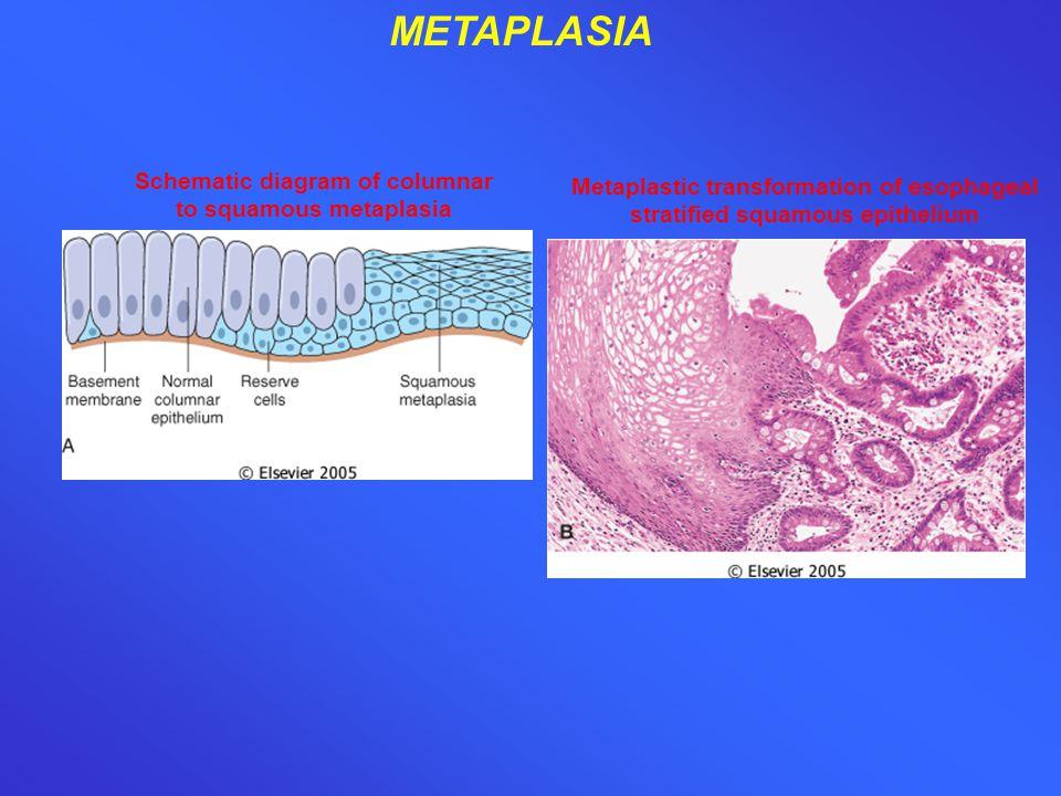 METAPLASIA Metaplastic transformation of esophageal