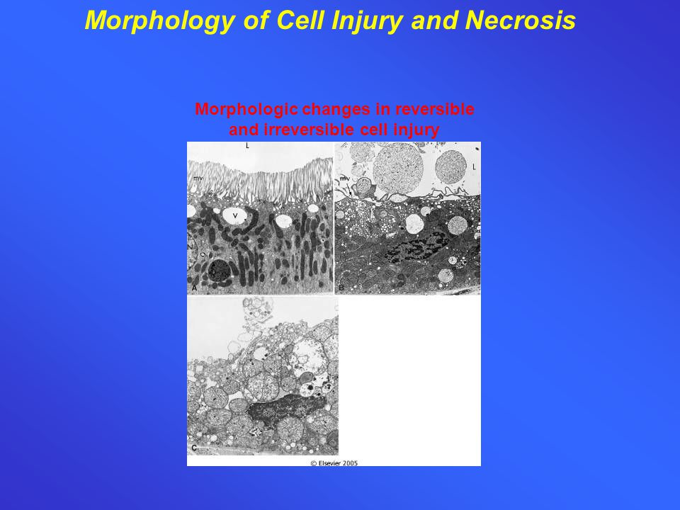 Morphology of Cell Injury and Necrosis