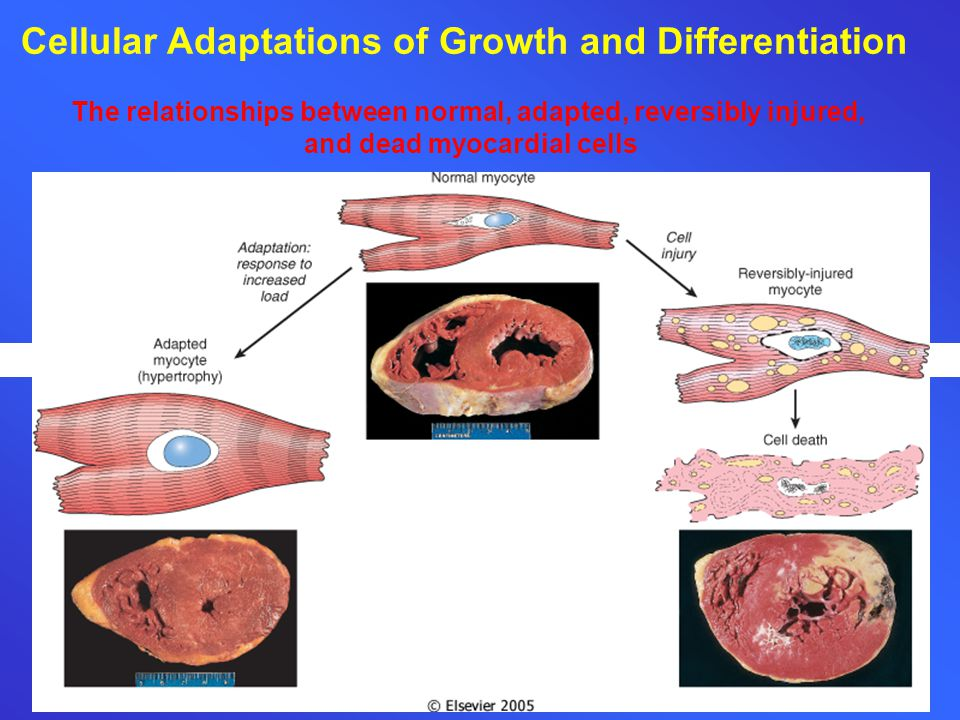 Cellular Adaptations of Growth and Differentiation