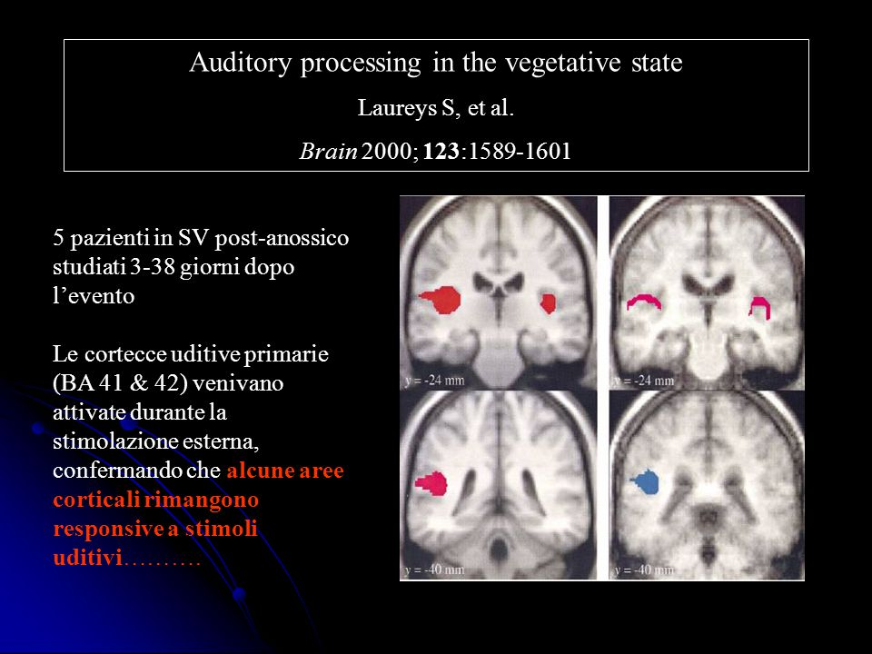 Auditory processing in the vegetative state