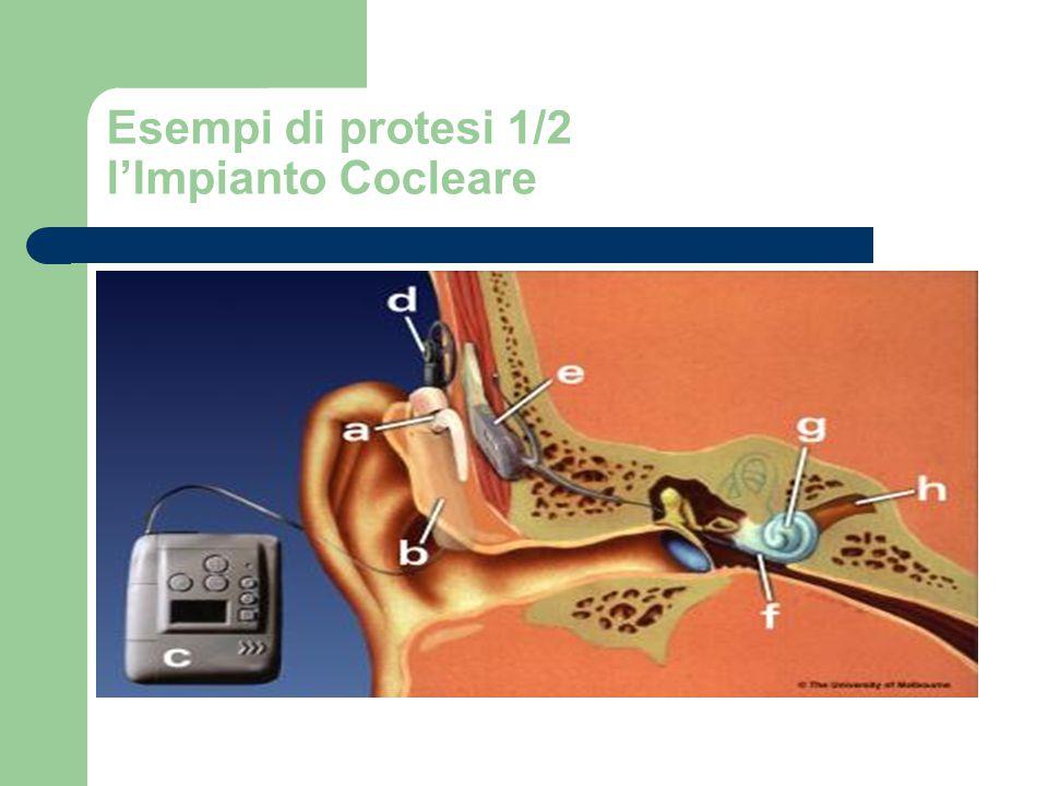 Esempi di protesi 1/2 l'Impianto Cocleare