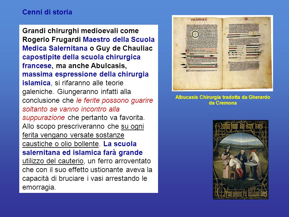 Albucasis Chirurgia tradotta da Gherardo da Cremona