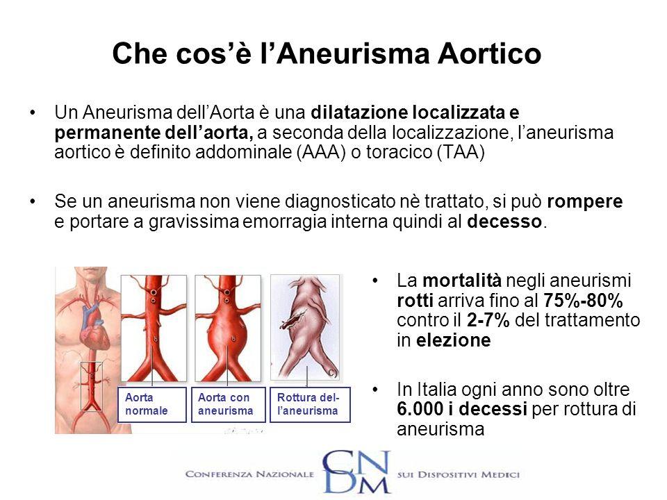 Che cos'è l'Aneurisma Aortico