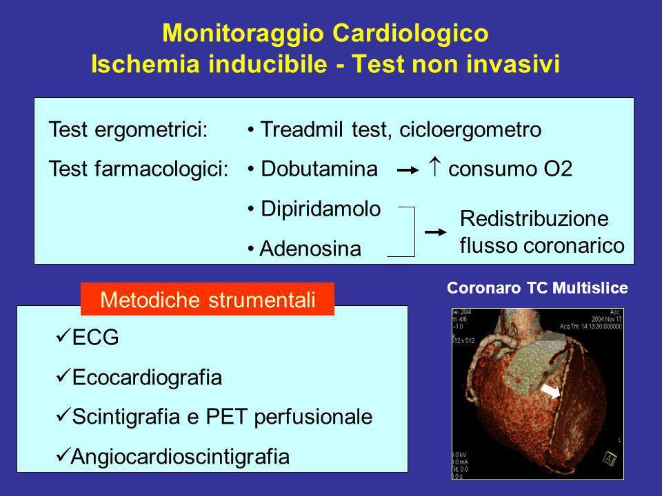 Monitoraggio Cardiologico Ischemia inducibile - Test non invasivi