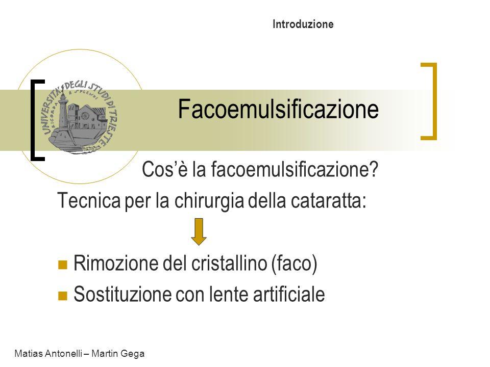 Cos'è la facoemulsificazione