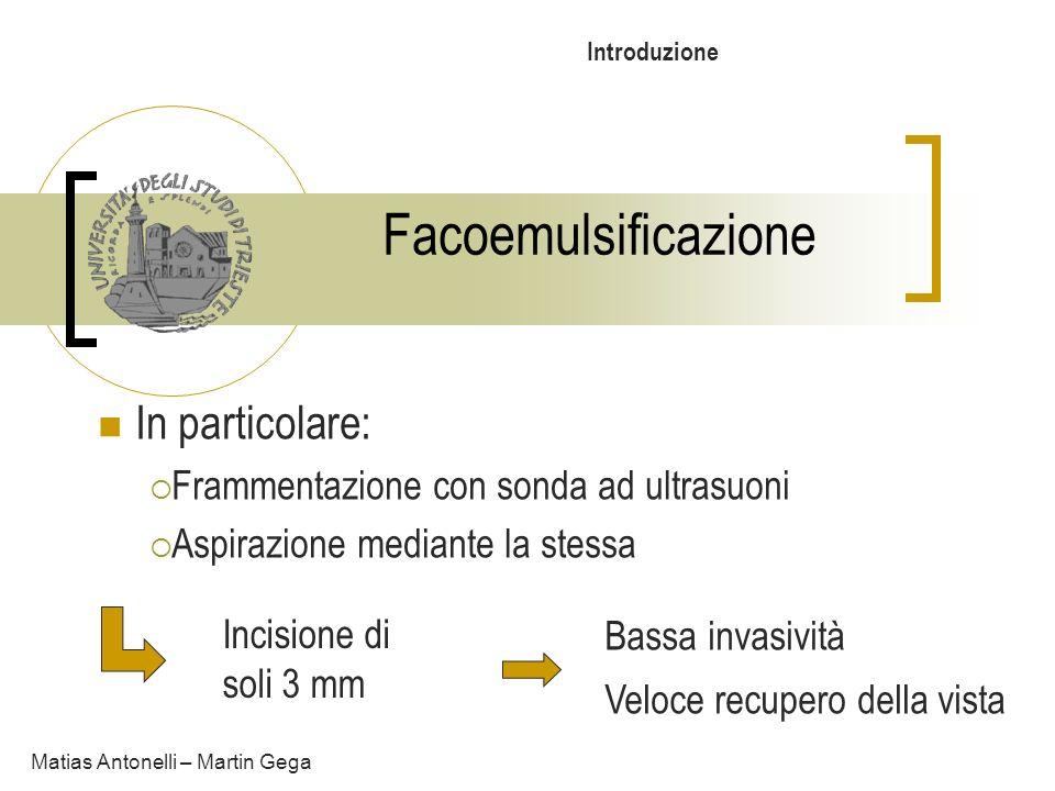 Facoemulsificazione In particolare: