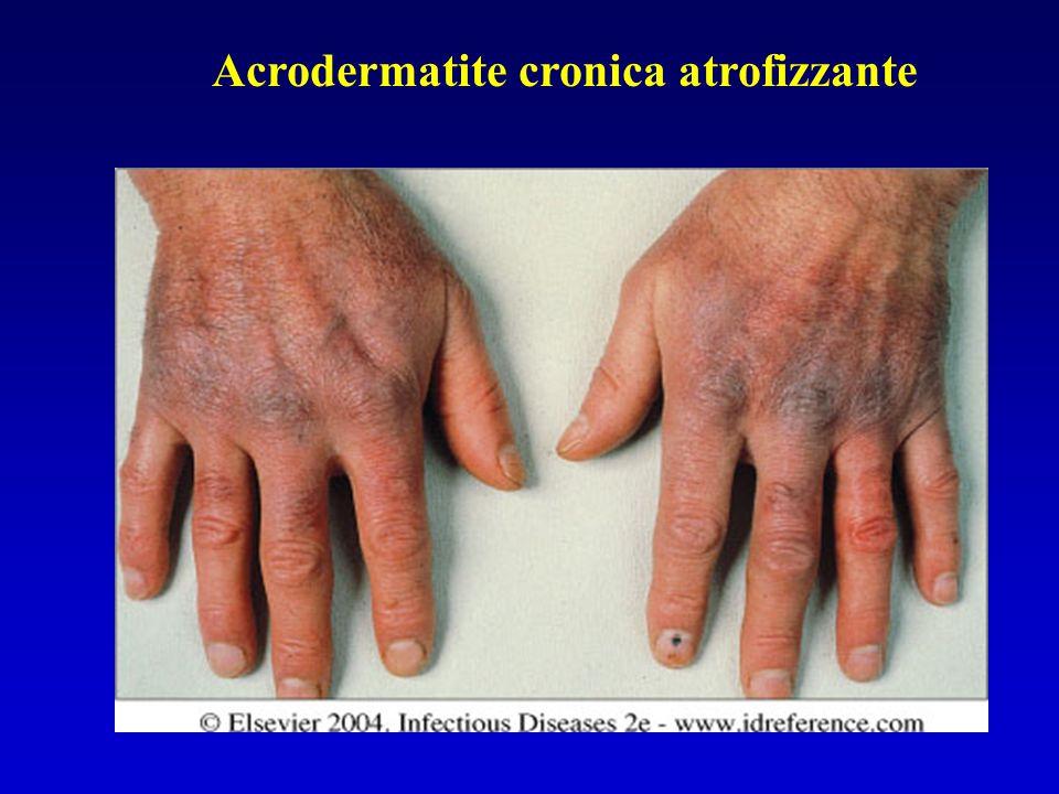 Acrodermatite cronica atrofizzante