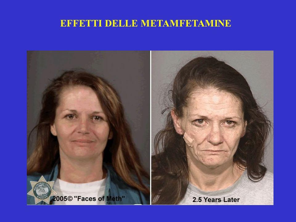 EFFETTI DELLE METAMFETAMINE