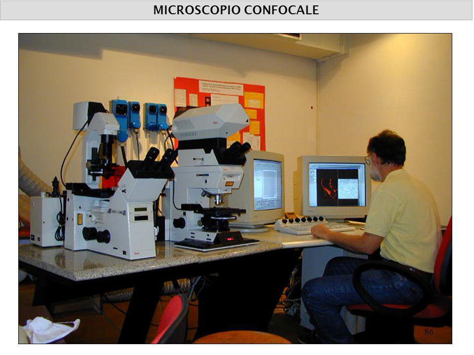 MICROSCOPIO CONFOCALE