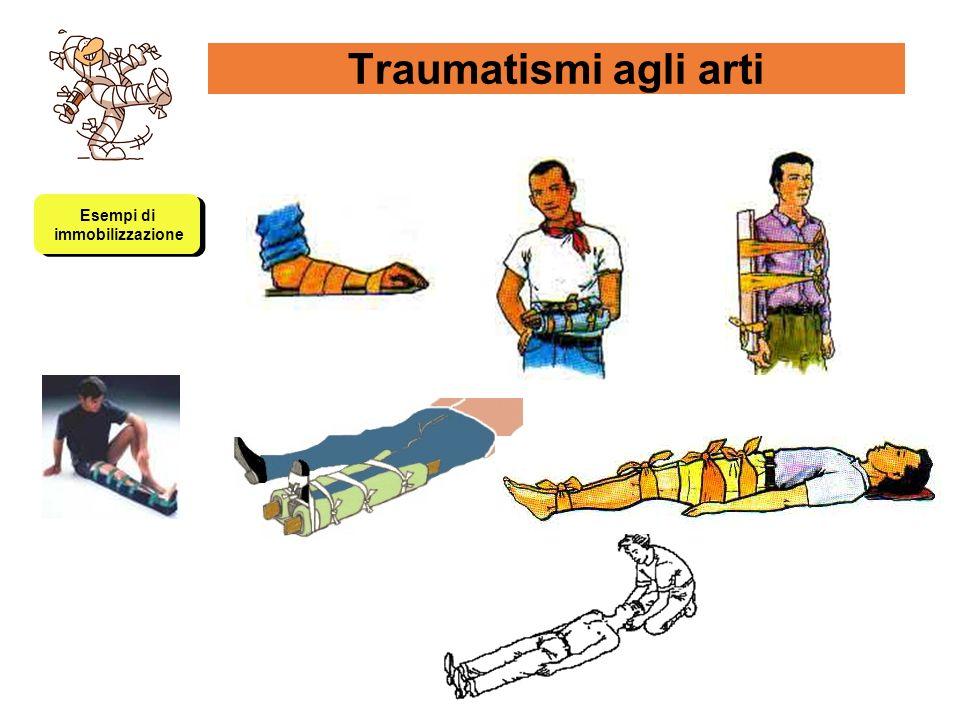 Traumatismi agli arti Esempi di immobilizzazione