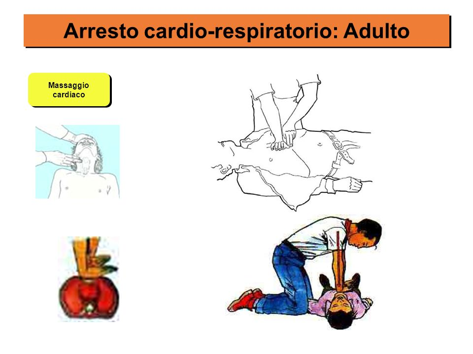 Arresto cardio-respiratorio: Adulto