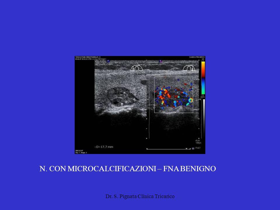 N. CON MICROCALCIFICAZIONI – FNA BENIGNO