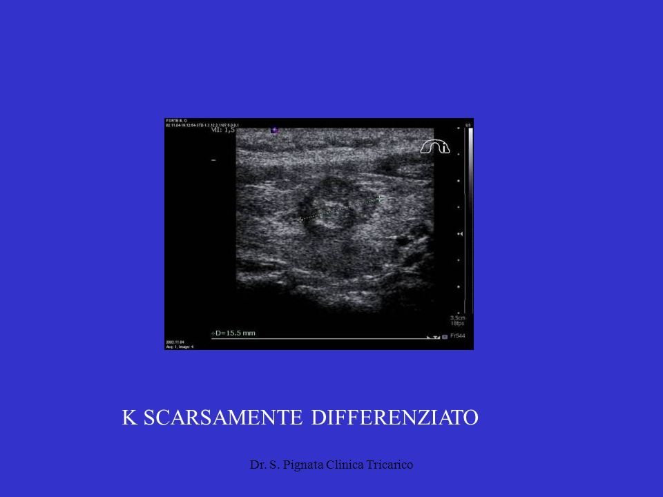 K SCARSAMENTE DIFFERENZIATO