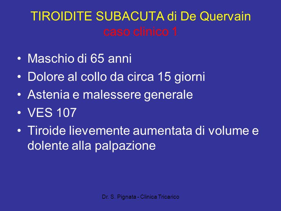 TIROIDITE SUBACUTA di De Quervain caso clinico 1