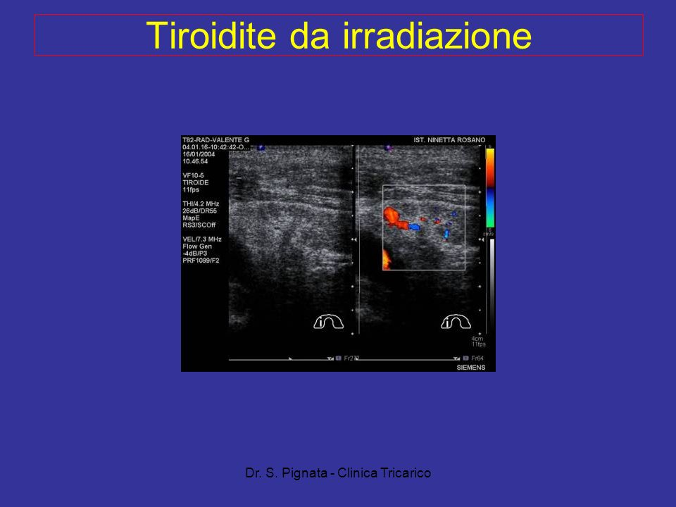 Tiroidite da irradiazione