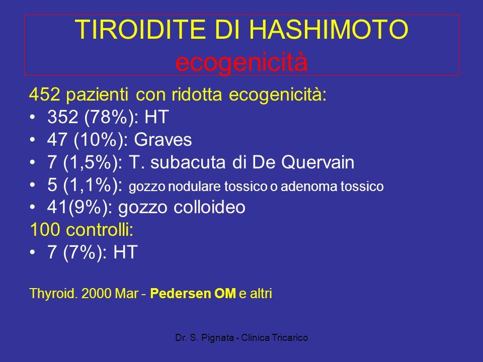 TIROIDITE DI HASHIMOTO ecogenicità