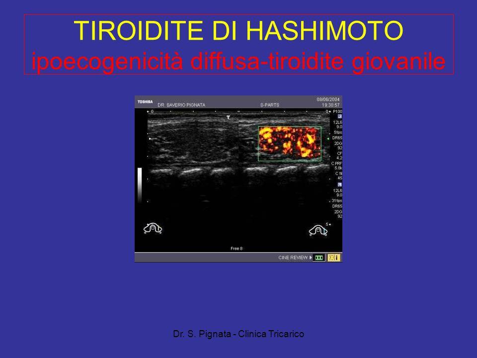 TIROIDITE DI HASHIMOTO ipoecogenicità diffusa-tiroidite giovanile