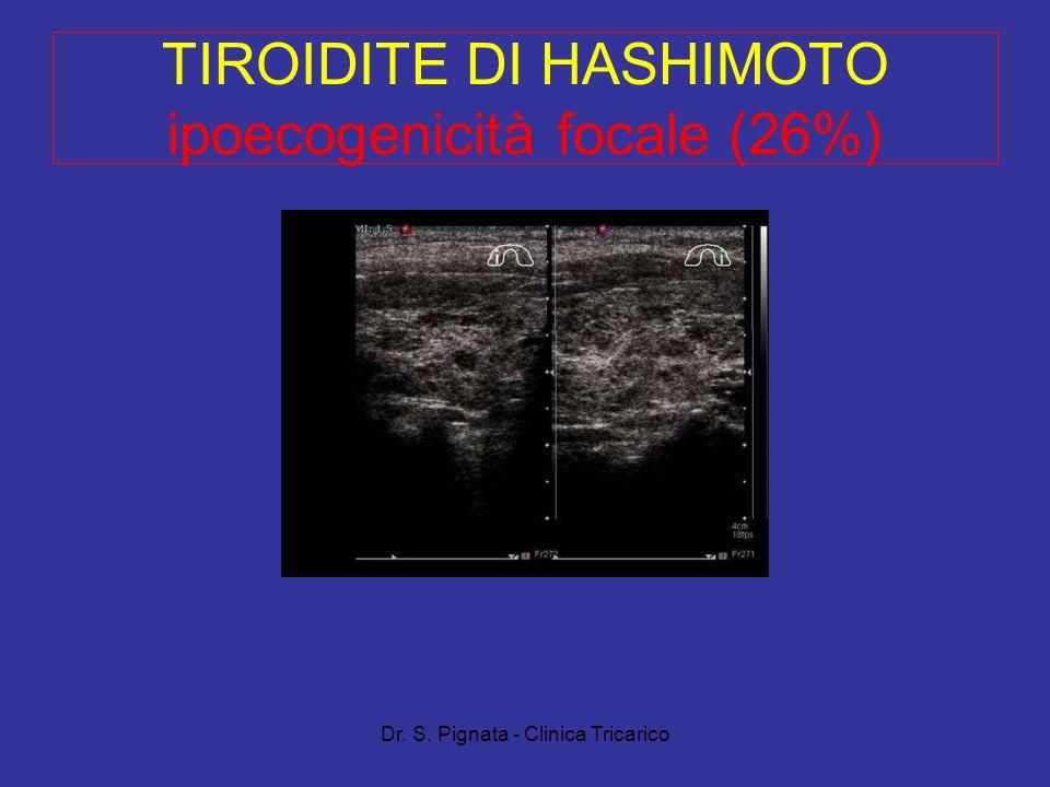 TIROIDITE DI HASHIMOTO ipoecogenicità focale (26%)