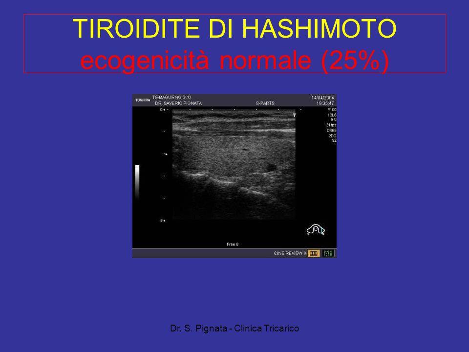 TIROIDITE DI HASHIMOTO ecogenicità normale (25%)