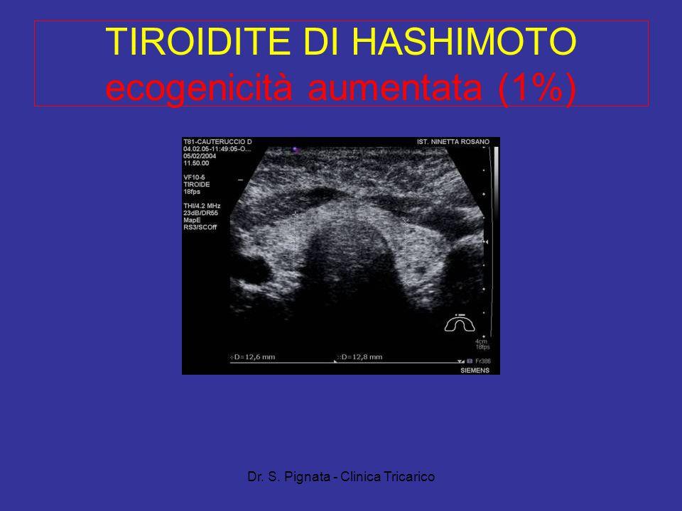 TIROIDITE DI HASHIMOTO ecogenicità aumentata (1%)