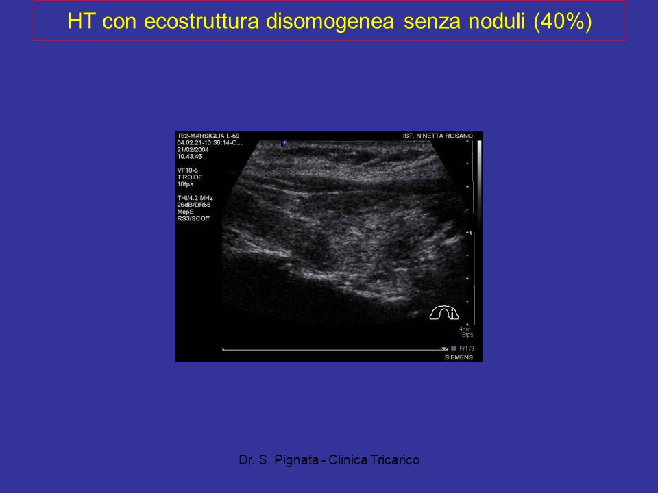 HT con ecostruttura disomogenea senza noduli (40%)