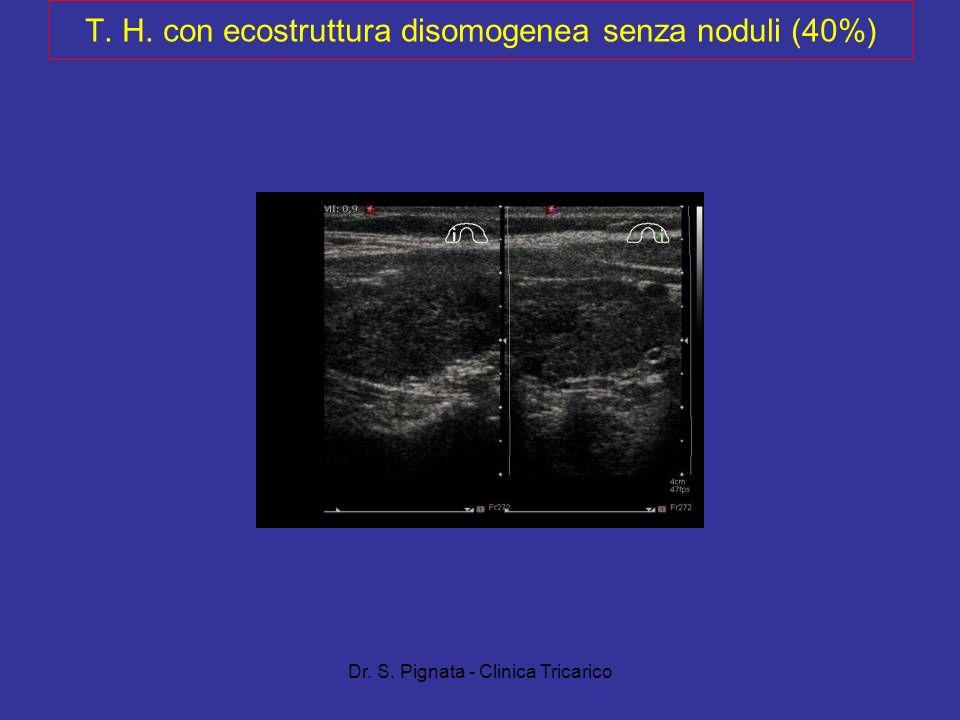 T. H. con ecostruttura disomogenea senza noduli (40%)