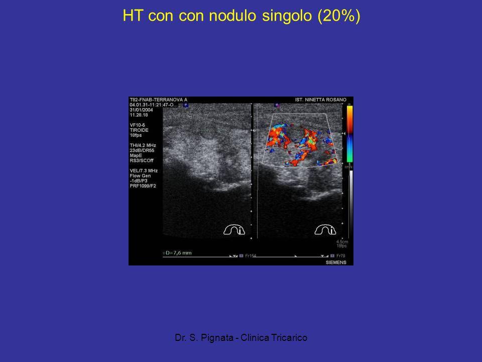 HT con con nodulo singolo (20%)