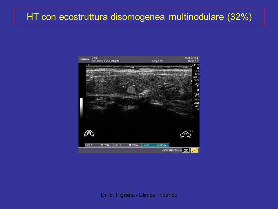 HT con ecostruttura disomogenea multinodulare (32%)