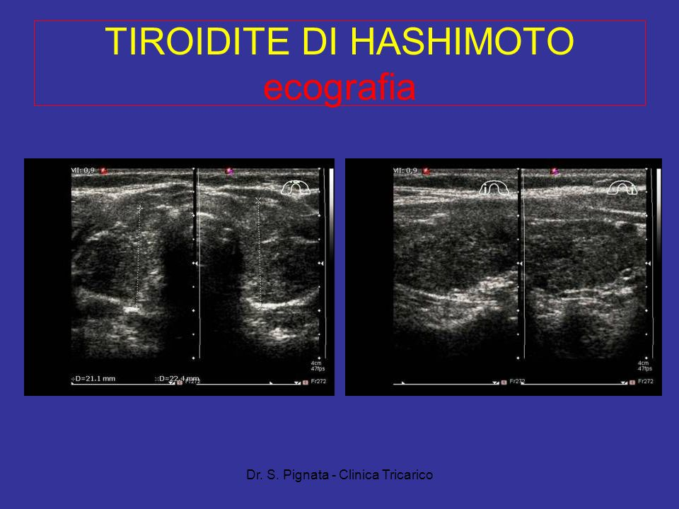 TIROIDITE DI HASHIMOTO ecografia