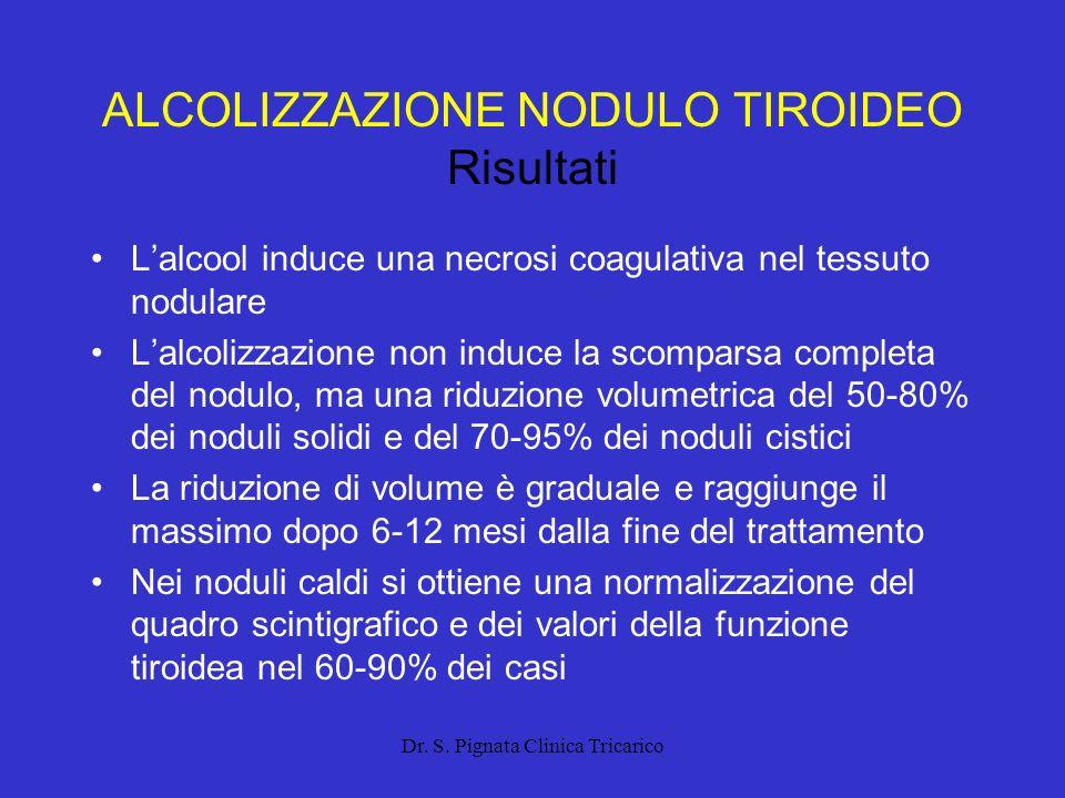 ALCOLIZZAZIONE NODULO TIROIDEO Risultati