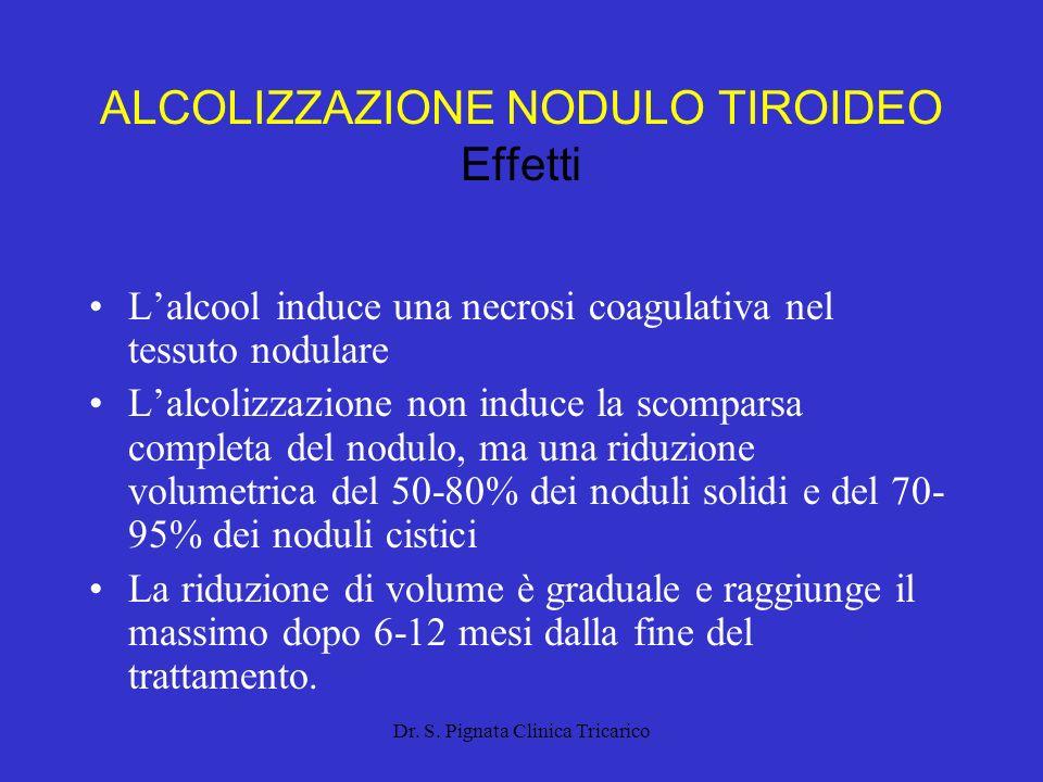 ALCOLIZZAZIONE NODULO TIROIDEO Effetti