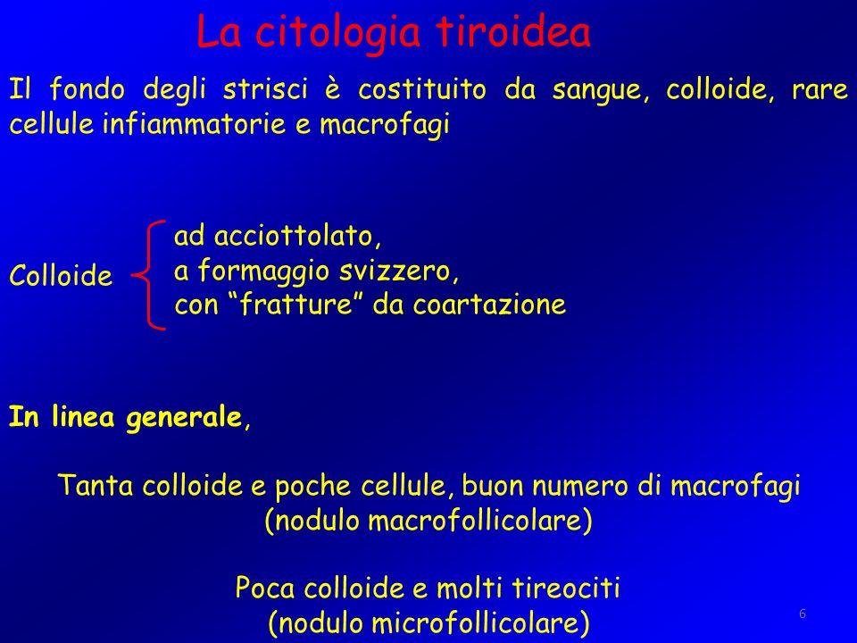 La citologia tiroidea Il fondo degli strisci è costituito da sangue, colloide, rare cellule infiammatorie e macrofagi.