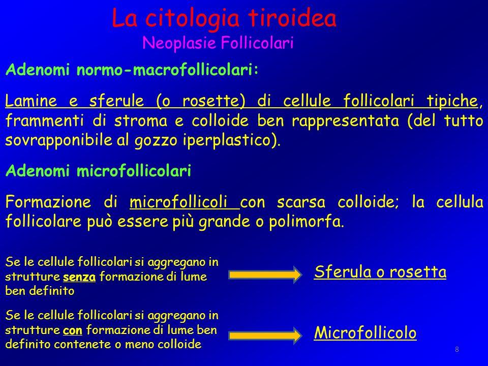 La citologia tiroidea Neoplasie Follicolari