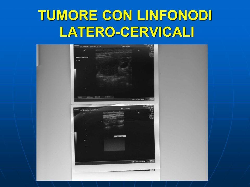 TUMORE CON LINFONODI LATERO-CERVICALI