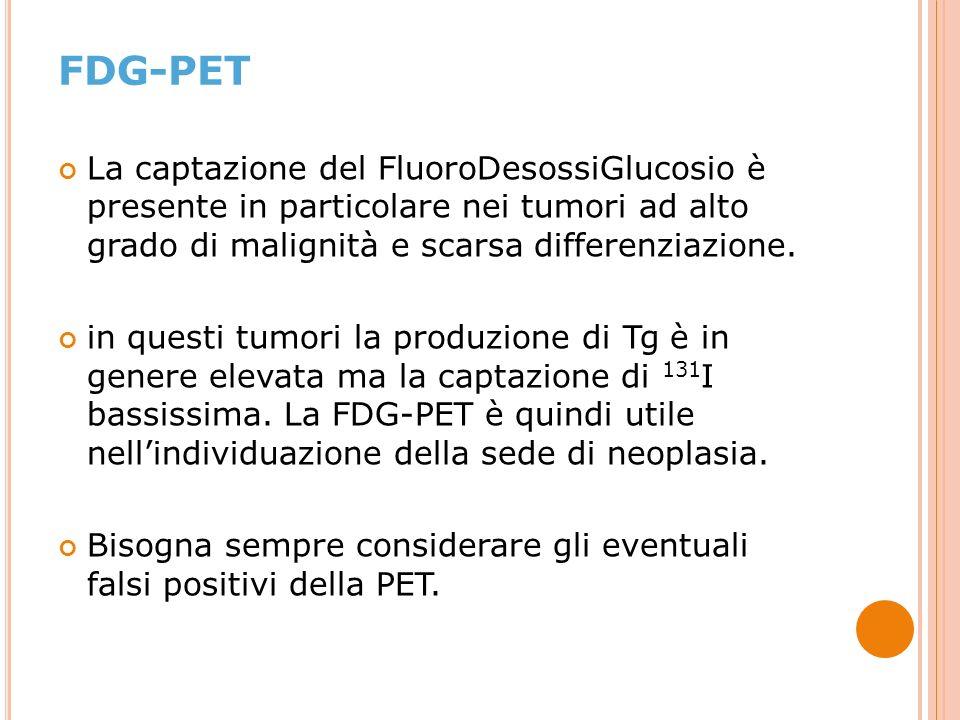 FDG-PET La captazione del FluoroDesossiGlucosio è presente in particolare nei tumori ad alto grado di malignità e scarsa differenziazione.