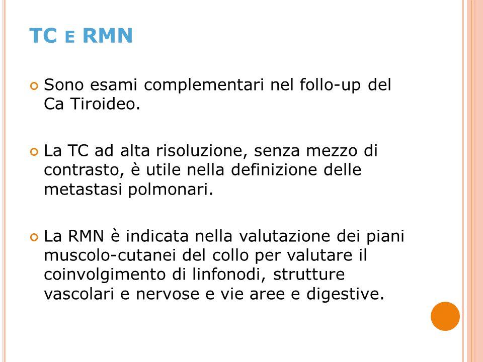 TC e RMN Sono esami complementari nel follo-up del Ca Tiroideo.