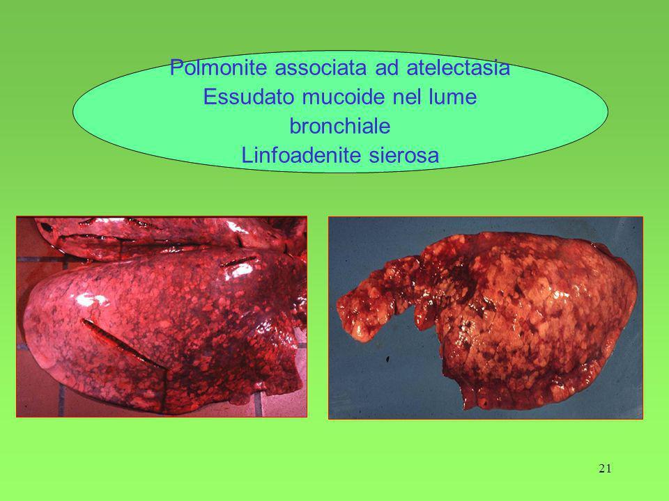 Polmonite associata ad atelectasia