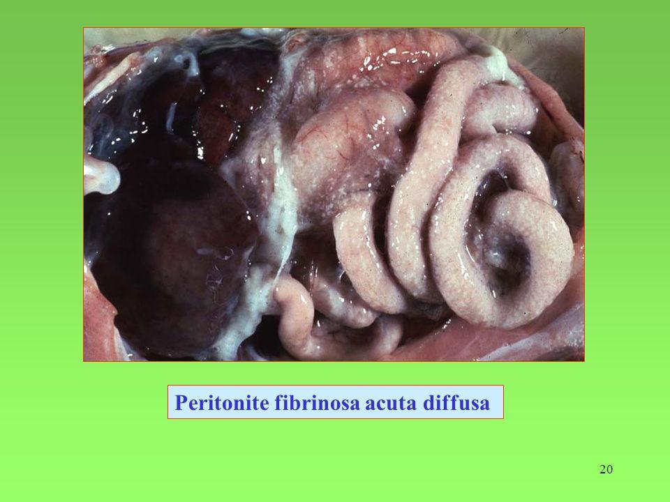 Peritonite fibrinosa acuta diffusa