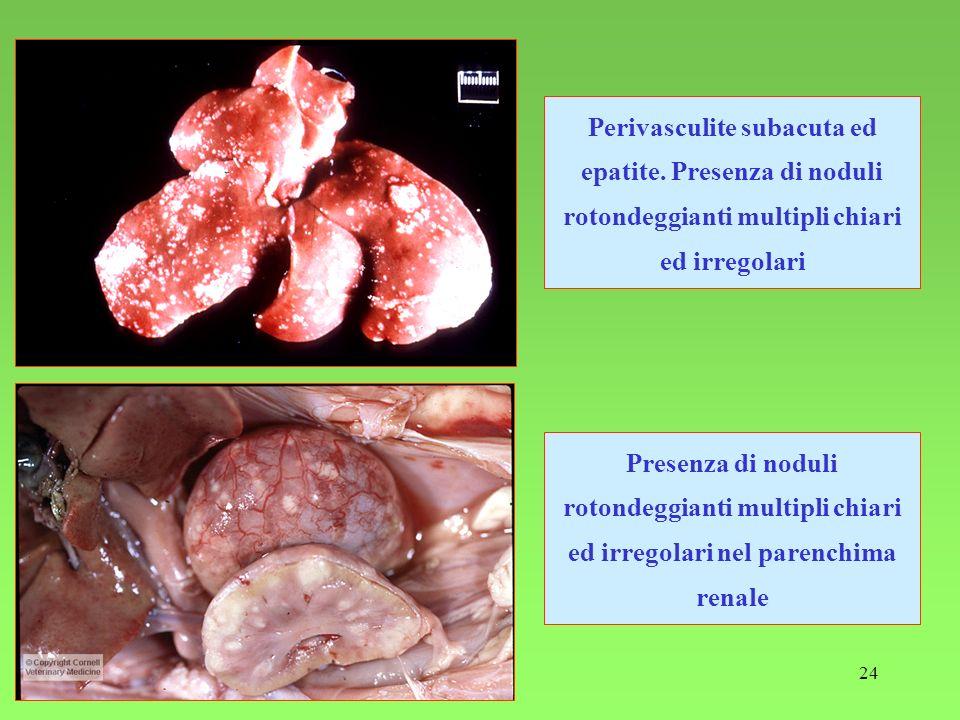 Perivasculite subacuta ed epatite