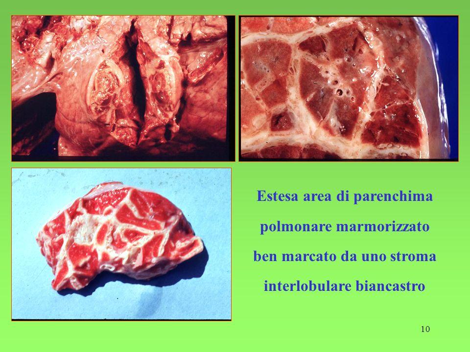 Estesa area di parenchima polmonare marmorizzato ben marcato da uno stroma interlobulare biancastro