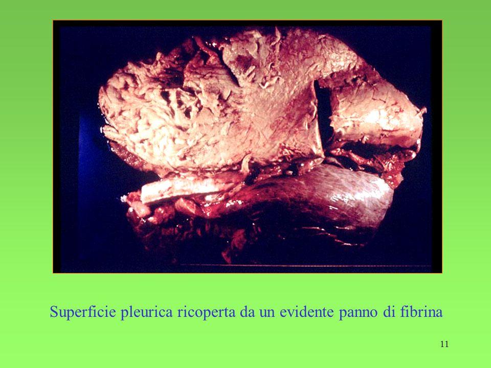 Superficie pleurica ricoperta da un evidente panno di fibrina