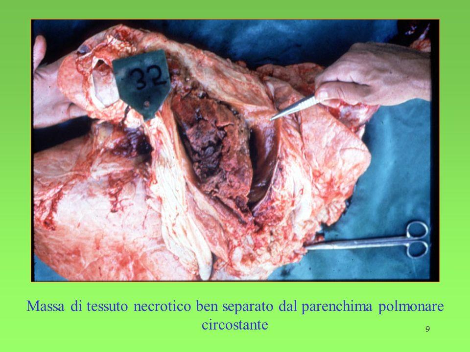 Massa di tessuto necrotico ben separato dal parenchima polmonare circostante