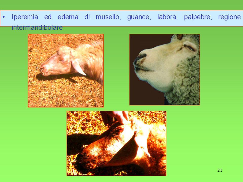 Iperemia ed edema di musello, guance, labbra, palpebre, regione intermandibolare
