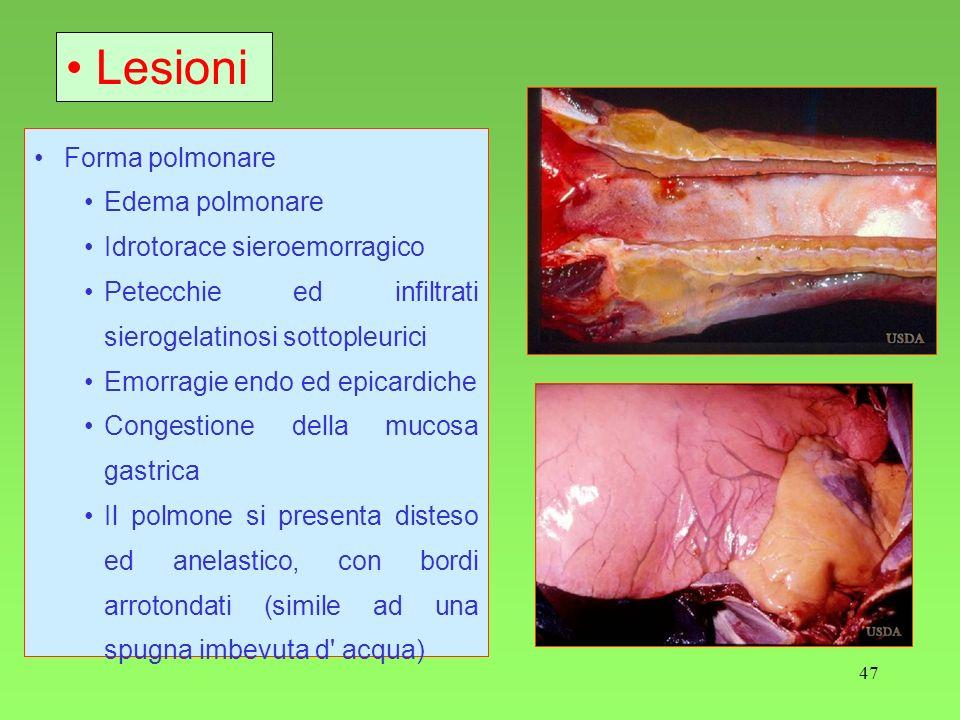 Lesioni Forma polmonare Edema polmonare Idrotorace sieroemorragico