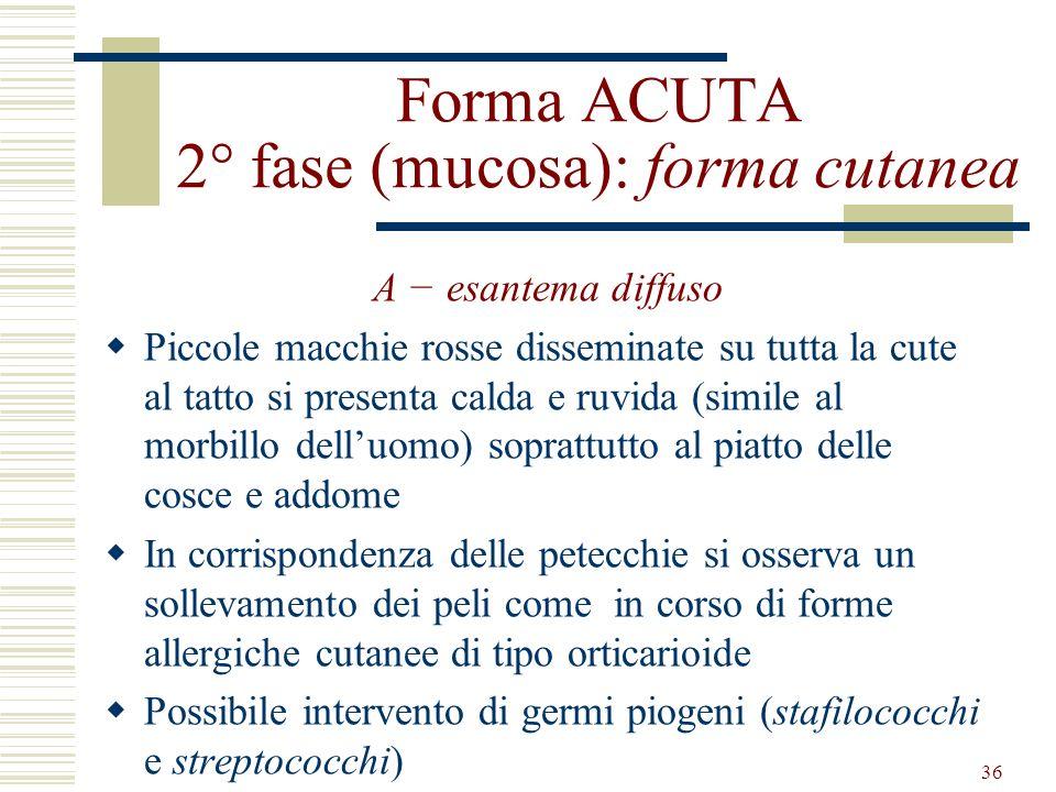 Forma ACUTA 2° fase (mucosa): forma cutanea